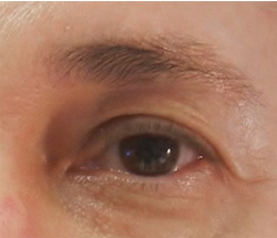 M Khan: Correction of droop on the outer corner of the eye  before