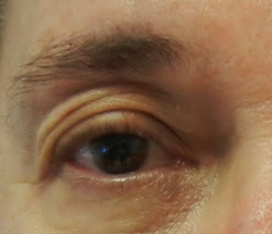 M Khan:Correction of upper eyelid droop before