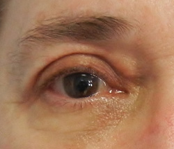 M Khan: Correction of upper eyelid droop  after