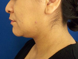 M Khan: Neck Liposuction: before