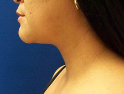 M Khan: Neck Liposuction:  after