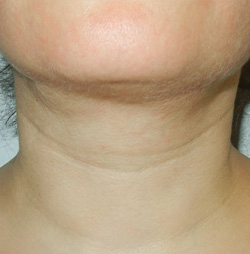 M Khan: Post-neck lift defects: after