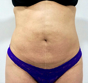 patient photo after Cryolipolysis