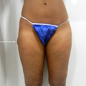 patient photo before Cryolipolysis