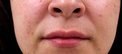 M Khan: Lip Augmentation after