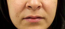 M Khan: Lip Augmentation before