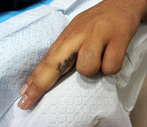 M Khan Dermatology and Cosmetic Surgery: Tattoo Removal